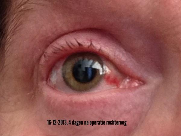 oogmeting oogarts